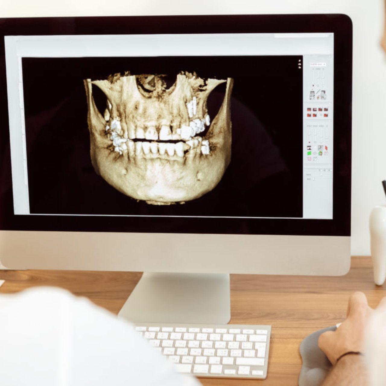Computer with image of person's jaw
